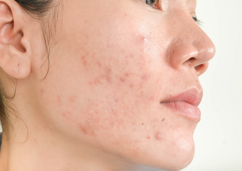 cómo-curar-el-acné